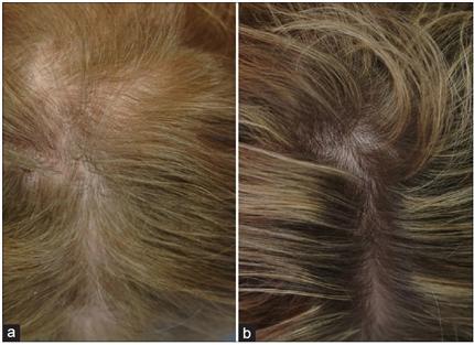 Alopecia Androgenética - Figura 1