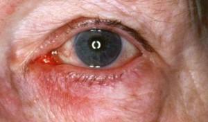 Rosácea Ocular
