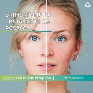 Brimonidina no tratamento da rosácea