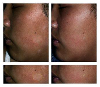 Tratamento de hipocromias e acromias