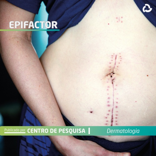 Epifactor® - Mulher com cicatriz na barriga