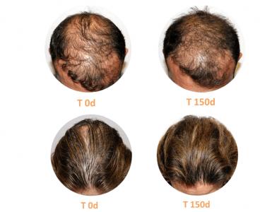 Tratamento estudo II Tratamento da queda de cabelo