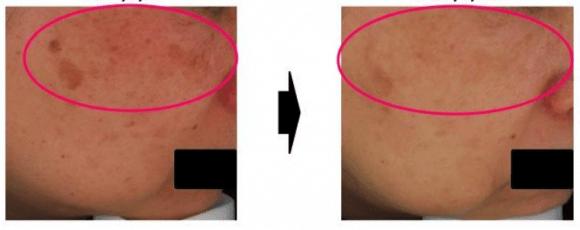 reduz rosacea e mancha hiperpigmentada