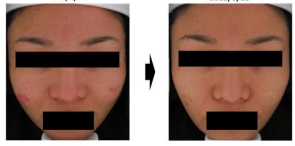 acne e poros