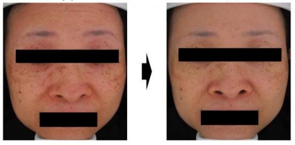 hiperpigmentação reduzida