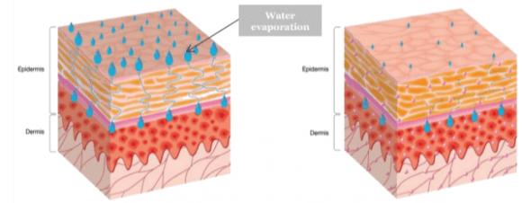 Perda de água transepidermal