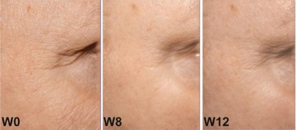 Lipowheat e profundidade das rugas após o uso
