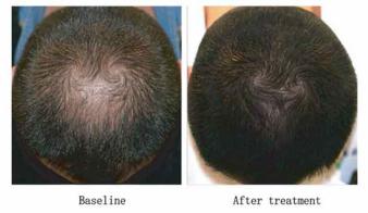 Resultados antes e após procedimento de microagulhamento associado a aplicação tópica de minoxidil a 5%
