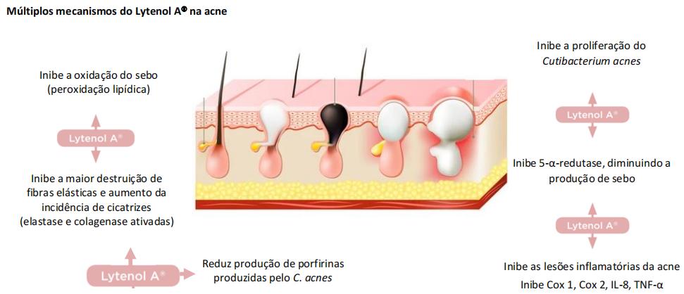 Back e acne e melasma
