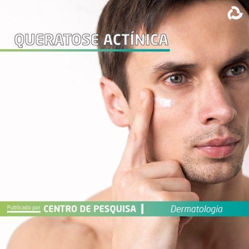 Queratose actínica - Homem creme no rosto