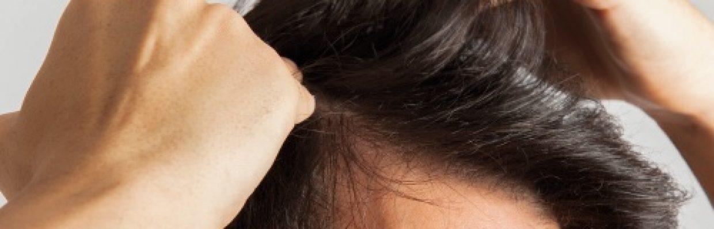 S-equol-Alopecia