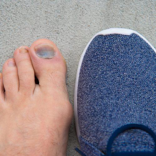 Uncomfortable,Shoes.,Nail,Fungus.,Healthy,Feet.,Finger,Disease.,Hematoma.,Toe
